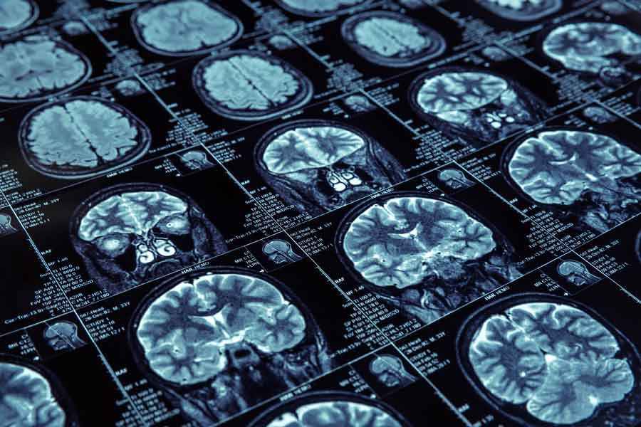 Magnetic resonance imaging brain scans